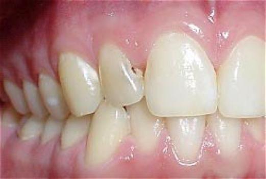 Hoe-ontstaan-gaatjes-in-tanden-voorbeeld-uitleg-van-tandartspraktijk-Darwinkliniek-tandarts-Zoetermeer.png