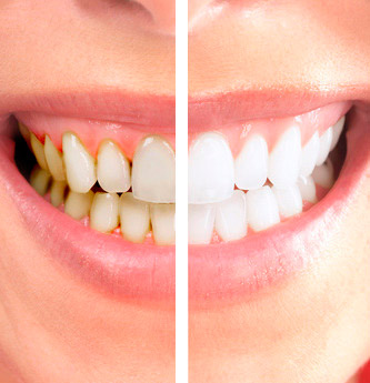 Wat-is-Parodontitis-uitleg-door-tandarts-Darwinkliniek