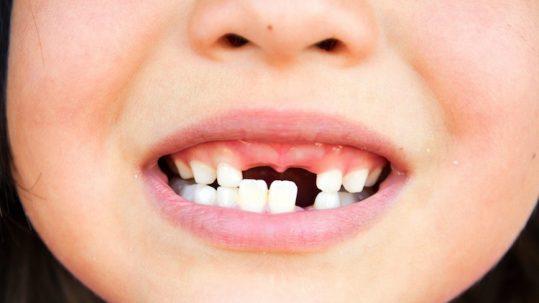 dating iemand slechte tanden