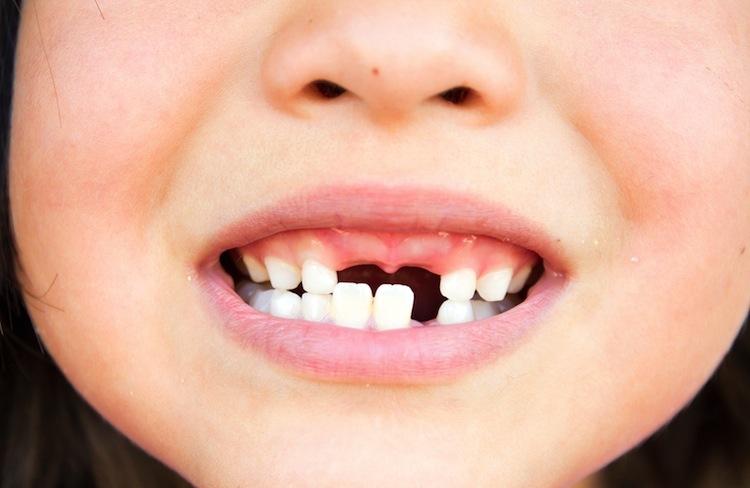 is-de-stand-van-kindertanden-te-beinvloeden-tandarts-controle-bij-darwinkliniek-tandartspraktijk