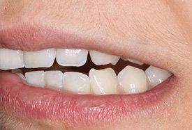 pijnlijke-tanden-door-tandenknarsen-voorkomen-tandartsen-darwinkliniek