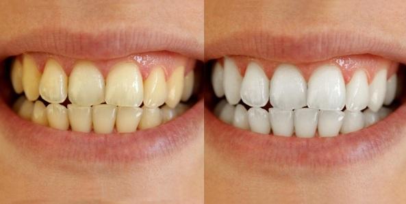 5-weetjes-over-tanden-gele-tanden-versus-witte-tanden-darwin-kliniek-zoetermeer