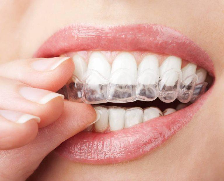 Anti-tandenknars-bitje-laten-maken-door-Darwinkliniek-768x619