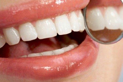 Gezond-gebit-geen-gebitsslijtage-dankzij-Darwinkliniek-Zoetermeer