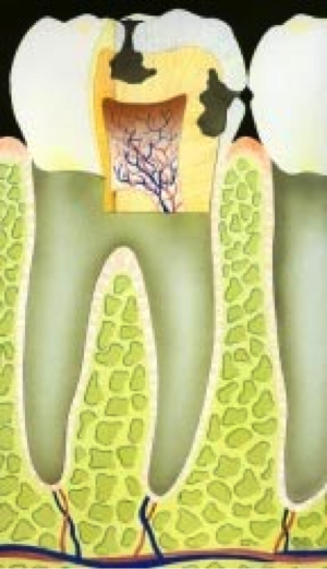Hoe-ontstaan-gaatjes-in-tanden-schematische-weergave-uitleg-door-tandartspraktijk-Darwinkliniek-tandarts-Zoetermeer