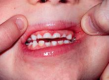 Kleine-tanden-door-tandenknarsen-vraa-hulp-tandartsen-Darwinkliniek