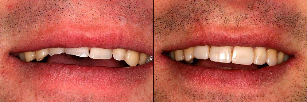 Tandenknarsen-slijtage-tanden-gebitsslijtage-tandenknarsen-voorkomen-DarwinKliniek