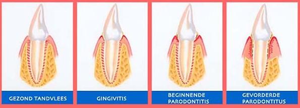 Wat-is-Parodontitis-uitleg-door-tandarts-Darwinkliniek-schematische-weergave-parodontitis