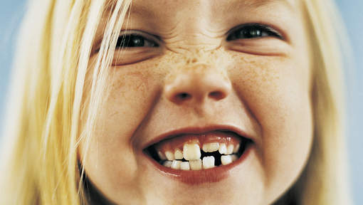 Wat-weet-jij-over-het-melkgebit-en-blijvende-gebit-Darwinkliniek-tandartspraktijk-Zoetermeer